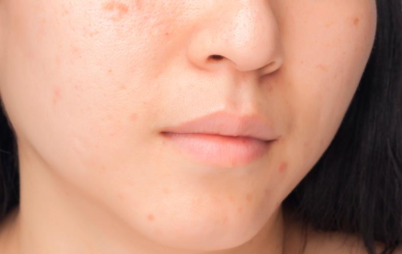 肌のくすみは角質が原因?