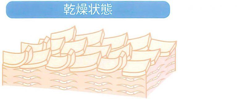 ■ニキビも肌荒れも。肌トラブルの全ての原因は「乾燥」?!