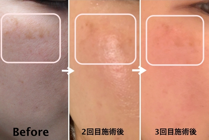 シミ 治療 肝斑 美容クリニック 消える タカミクリニック