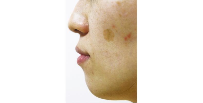 老人性色素斑 シミ 治療 肝斑 美容クリニック 消える タカミクリニック