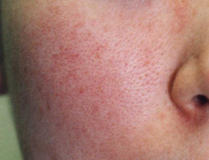 マスク 肌荒れ 原因 対策 スキンケア 乾燥 皮むけ